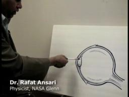 NASA Glenn physicist pioneers laser detection of cataracts