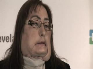 Face transplant recipient Connie Culp revealed at Cleveland Cli
