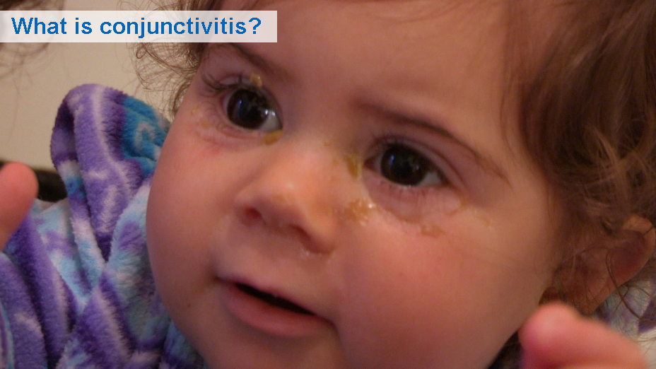 What is conjunctivitis? (6 to 30 months)