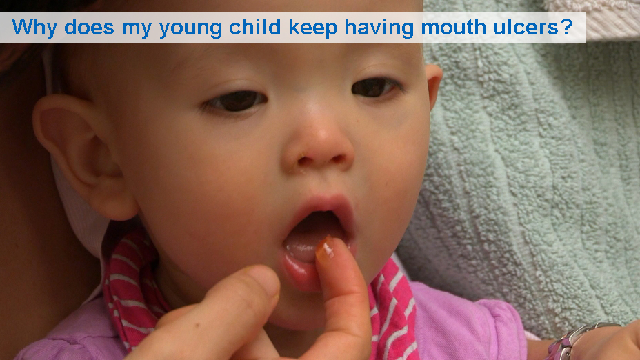 Why does my young child keep having mouth ulcers? (6 to 30 months)