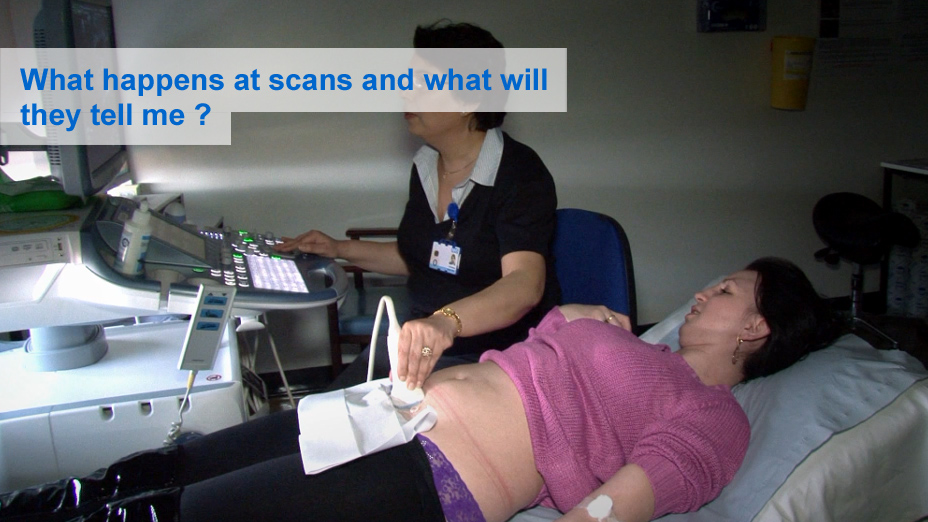 What happens at a scan and what will they tell me?