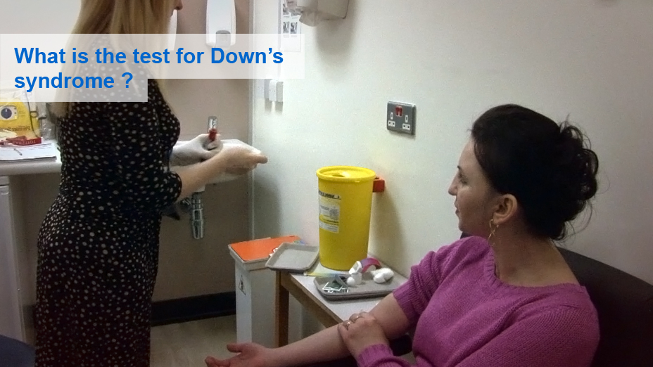 What is the test for Down syndrome?