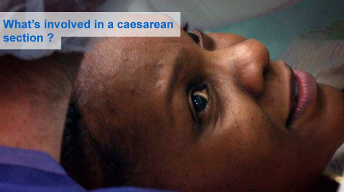 What's involved in a caesarean section?