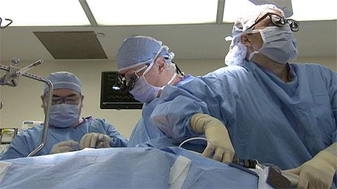 Heart-bypass surgery: What you need to know