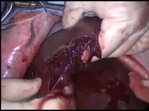 Liver Crush Injury With The Use Of Evarrest