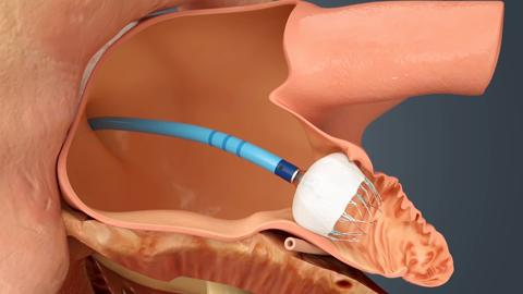 Sentara Heart - WATCHMANTM Left Atrial Appendange Closure Device
