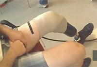 The Dynamic Socket - A Better Prosthesis